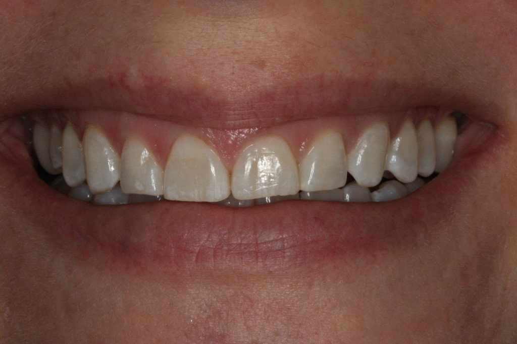 Close up on smile before pic
