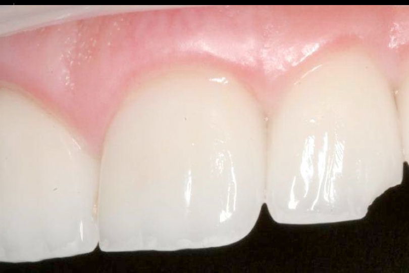 Close up of chipped tooth