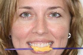 Stick bite photo by Gold Dust Dental Lab