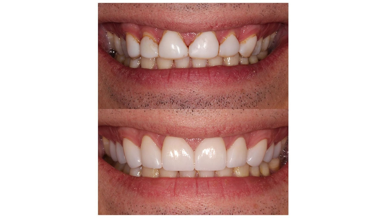 Close up of a before and after patient with cosmetic dentistry