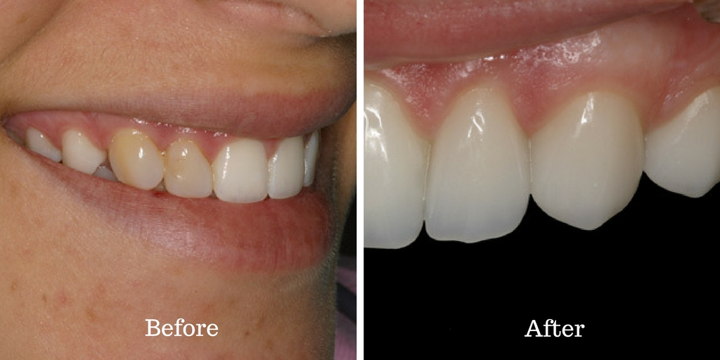 Before and after of this conservation case of the month.