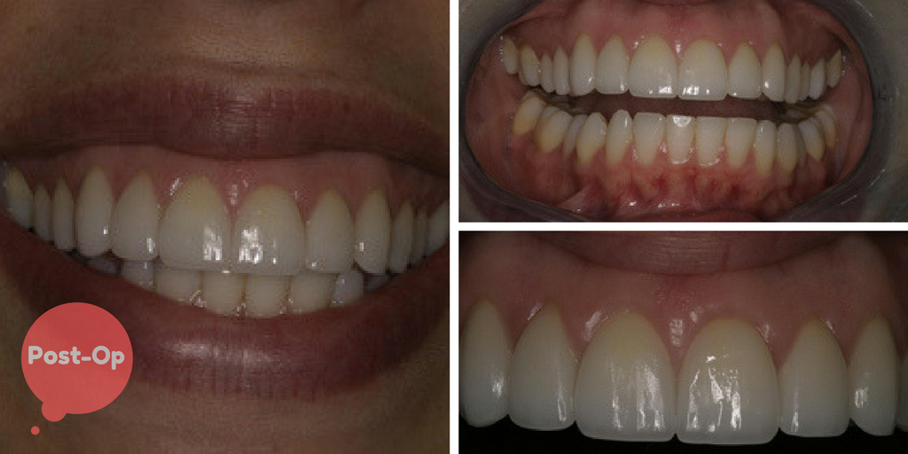 Restorative Excellence Case of the Month Post Op