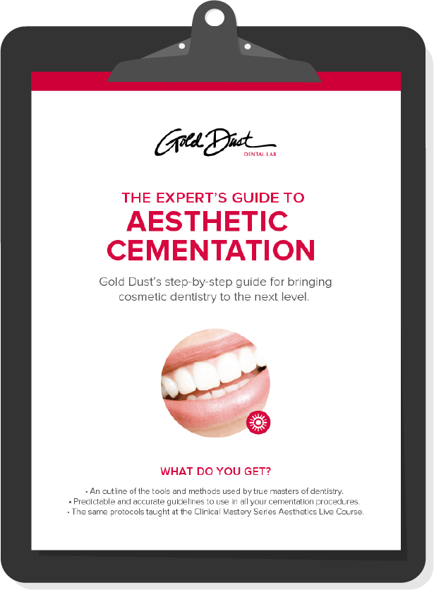 Expert's Cementation Guide Preview