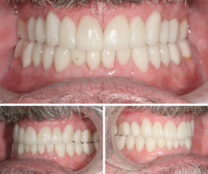 Full Mouth Rehab Treatment Case Photos