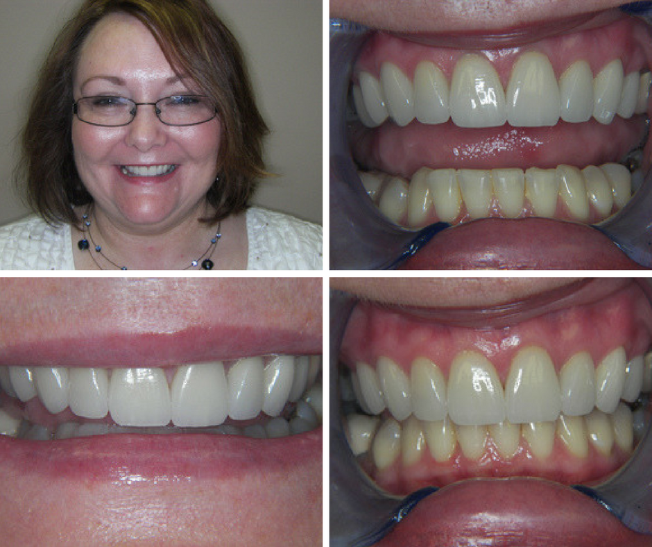Restoring a smile can give patients self-confidence.
