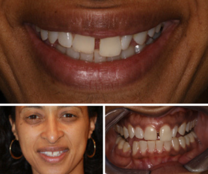 Pre-Op of Diastema Closure Case
