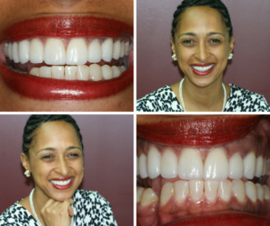 Post-Op of Diastema Closure Case