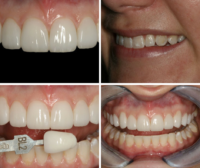 gorgeous results from empress aesthetics veneers