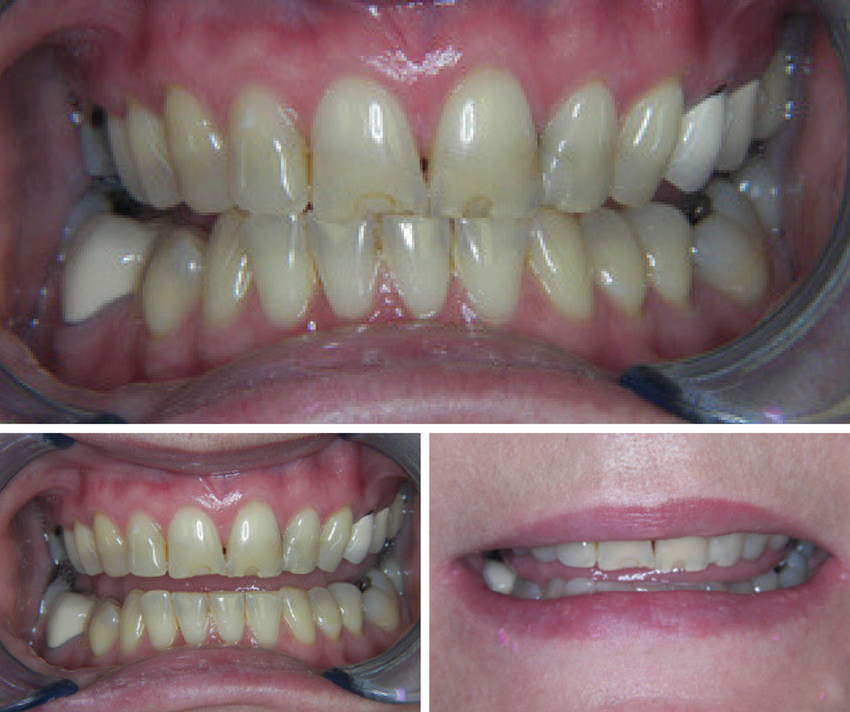 The rewarding aspects of restoring a smile.
