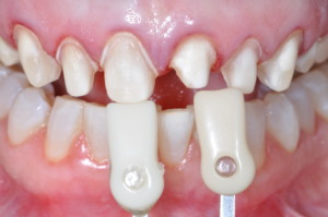 Color change is a typical patient goal with anterior restorations.