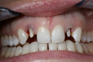 An understanding of tooth structure and ferrule is important for tooth prep.