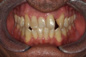 Dr. Chris Catalano Digital Dentistry Case Before