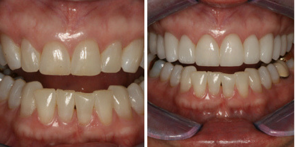 In this Case of the Month, Dr. Hornbrook explains his smile enhancement goals.
