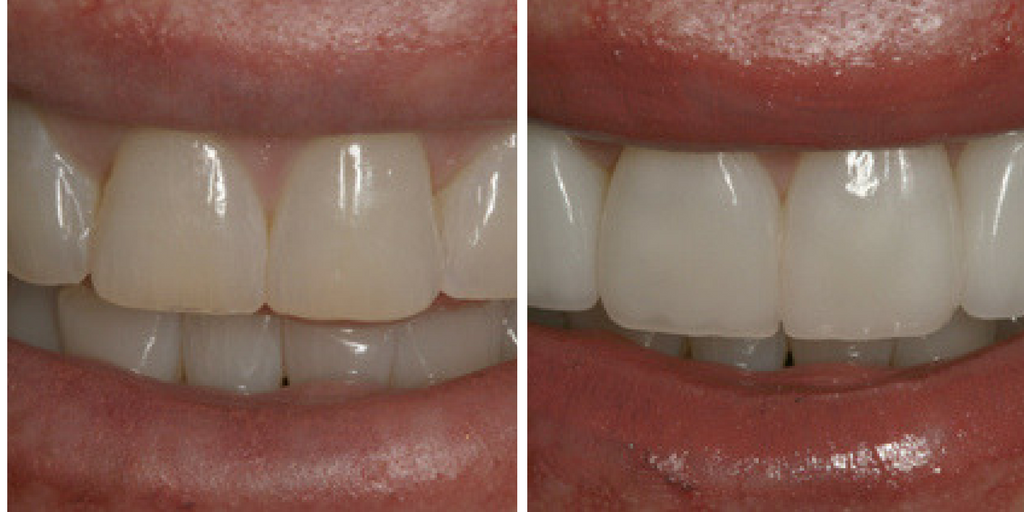Smile enhancement and minimal prep veneers go hand in hand.