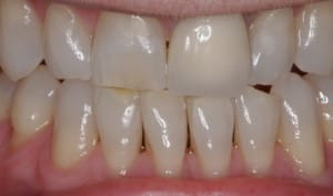 preparation design veneers