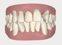 Dr. Chris Catalano Digital Dentistry Case Digital Invisalign