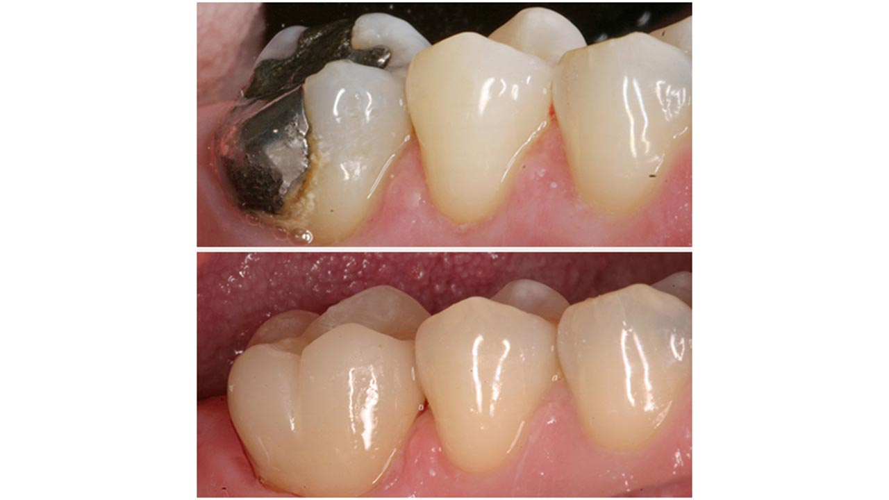 Gold Dust Dental Lab Work (5)