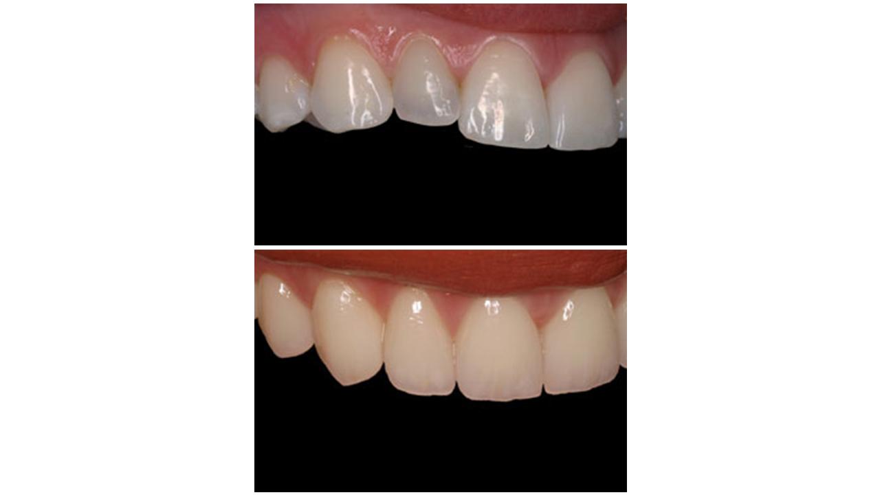 Gold Dust Dental Lab Work (18)