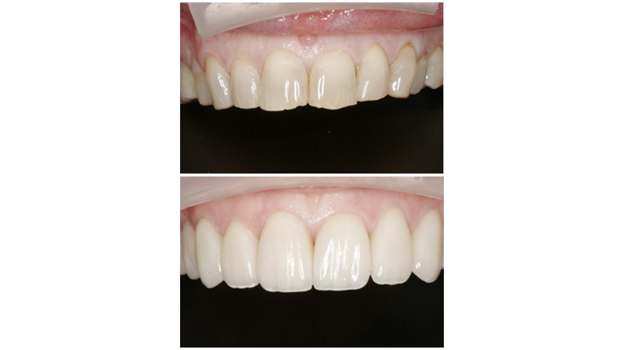 Gold Dust Dental Lab Work (19)