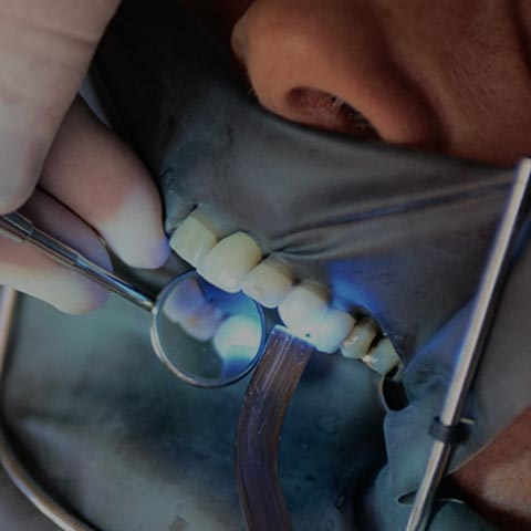 Close up of person having their teeth examined to illustrate a free cementation guide offered by this smile design dental lab