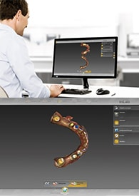 CEREC Connect