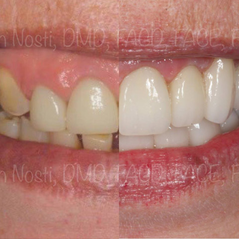 Full Mouth Rehabilitation | Restorative Dental Lab Work