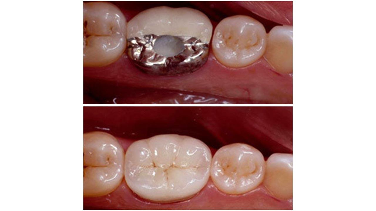 Gold Dust Dental Lab Work (6)