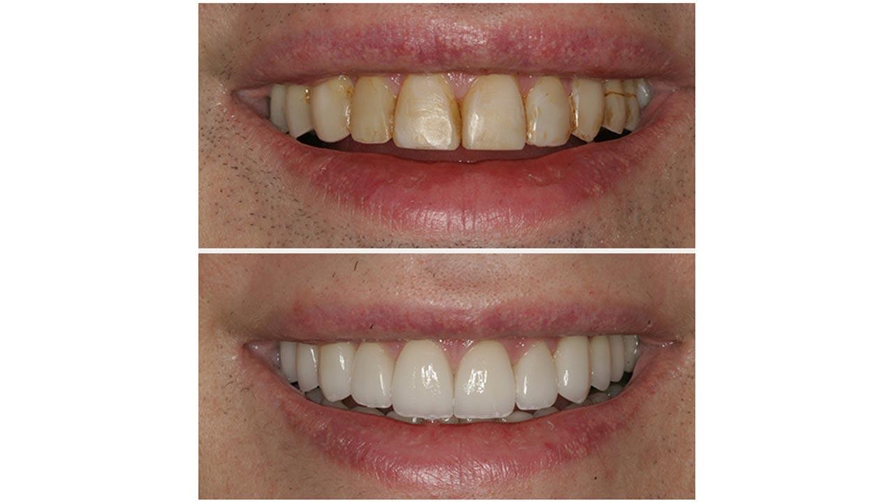 Gold Dust Dental Lab Work (8)