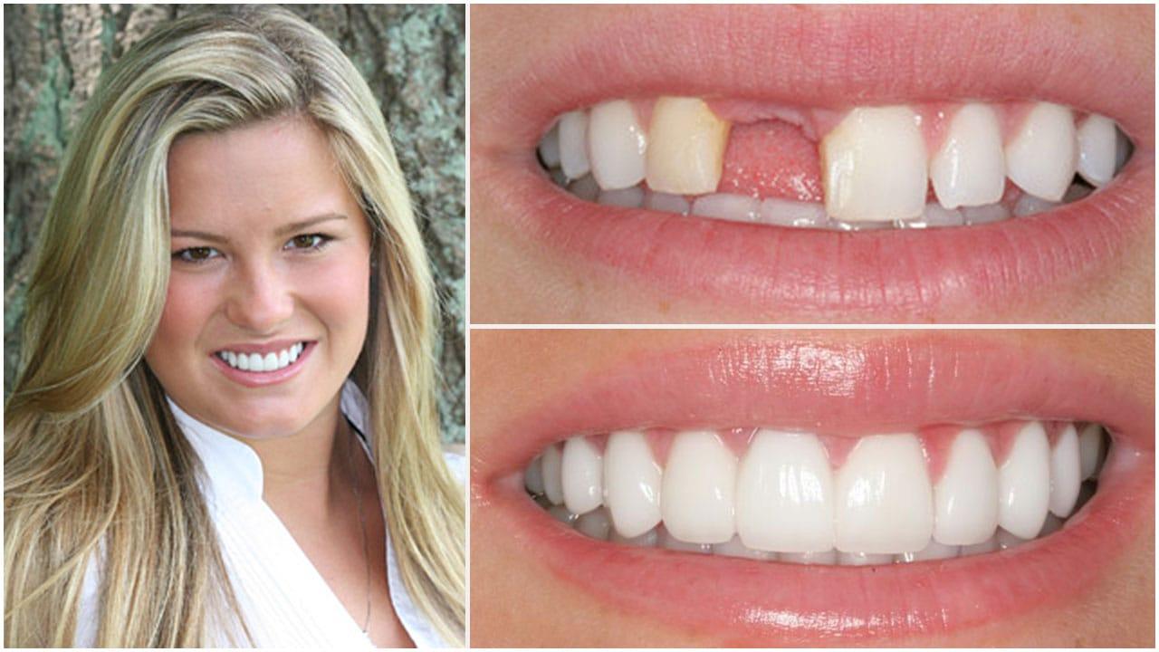 Gold Dust Dental Lab Work (2)