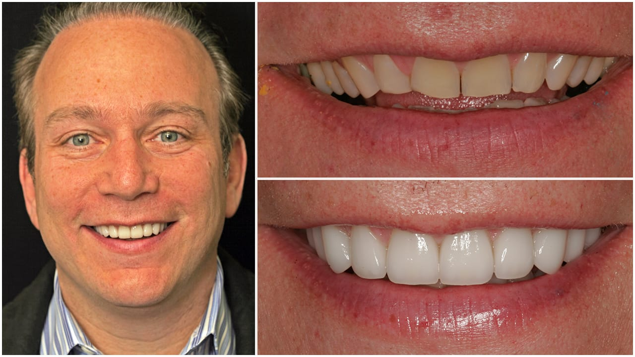 Esthetic Dental Lab   Gold Dust Dental Lab Work (1)