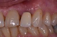 restoring aged or imperfect teeth