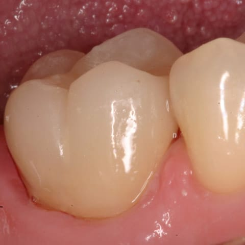 Single Unit Posterior | Gold Rush Dental Lab Product