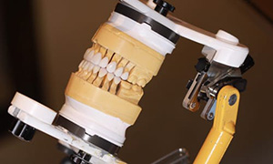 Stratos Articulator | Gold Dust Dental Lab