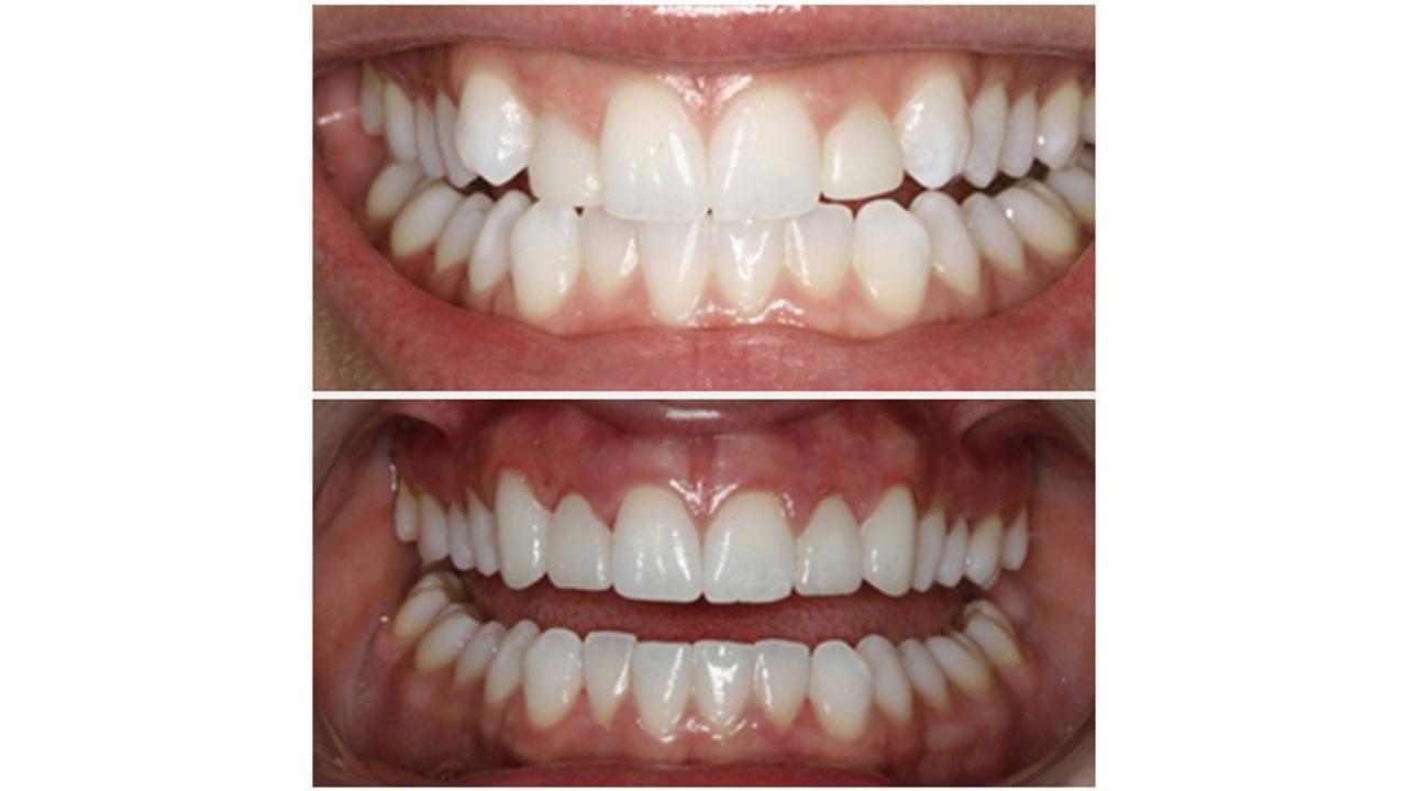 Gold Dust Dental Lab Work (10)
