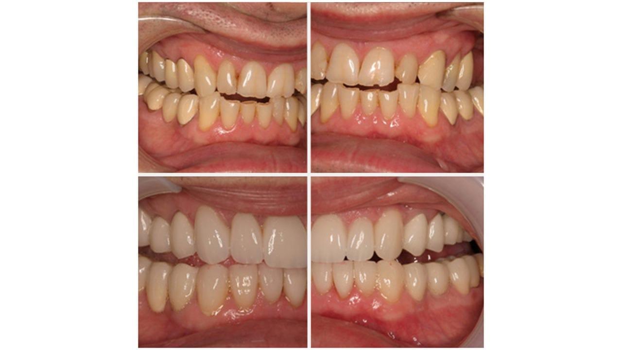 Gold Dust Dental Lab Work (12)
