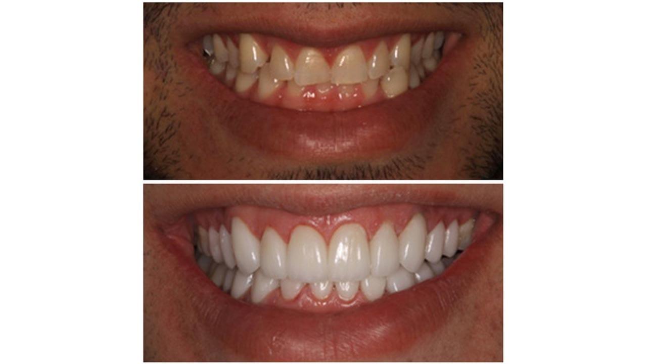 Gold Dust Dental Lab Work (13)