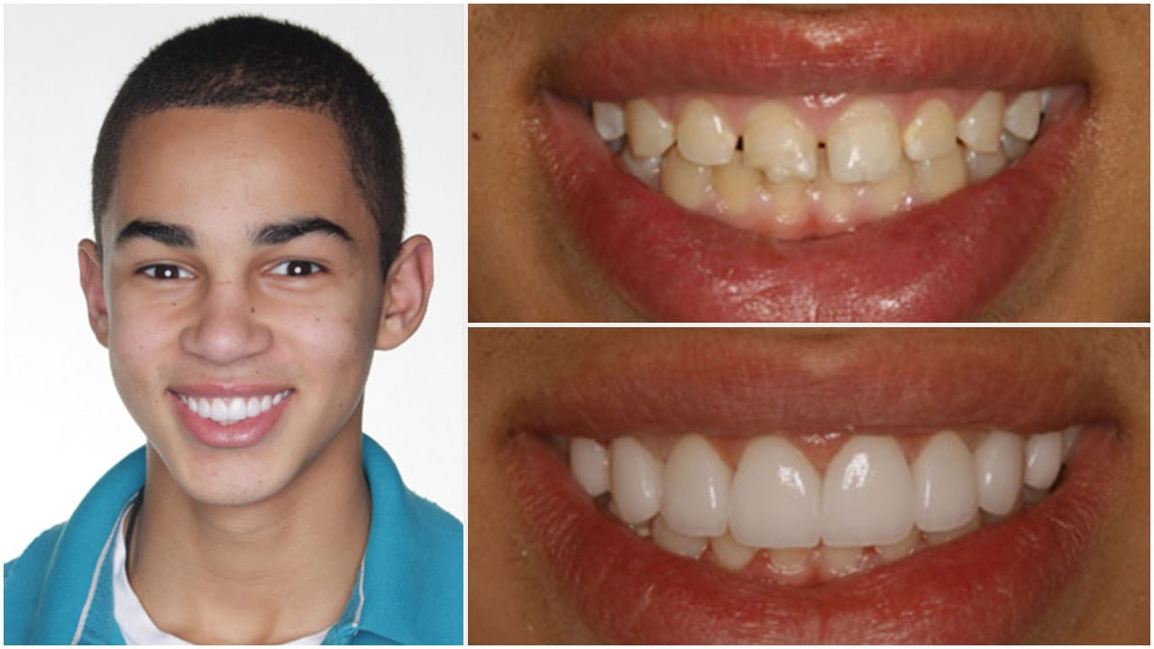 Gold Dust Dental Lab Work (15)