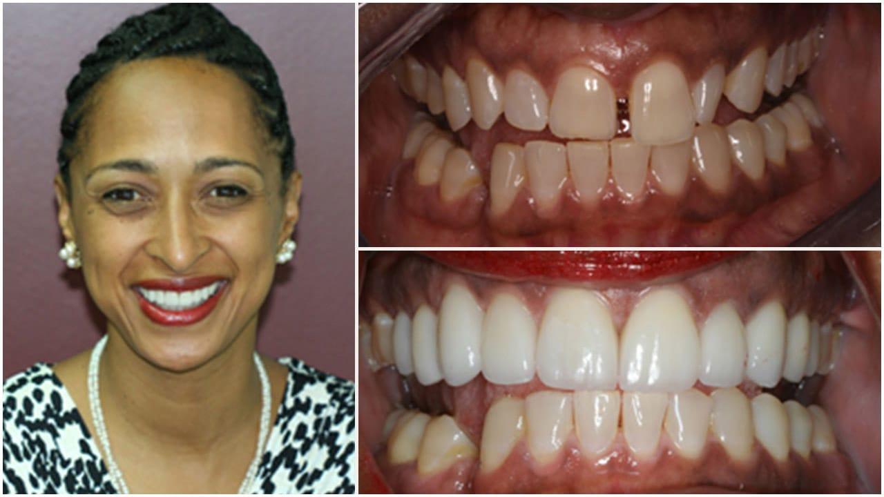 Gold Dust Dental Lab Work (16)