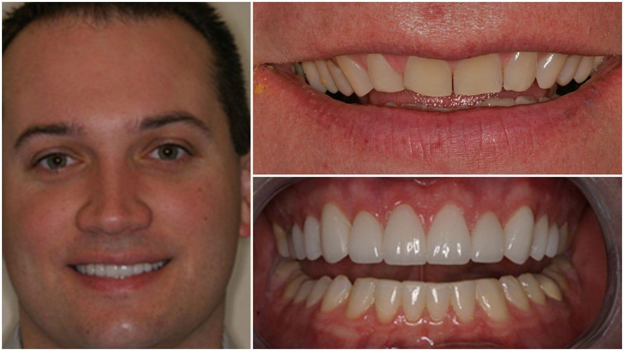 Gold Dust Dental Lab Work (11)
