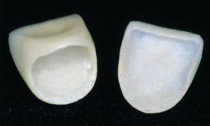 Gold Dust Dental Lab ceramist Joost Jorna clears up questions dentists have about seating a crown.