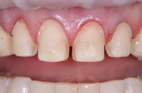Versatility of ceramic veneers in the dental practice.