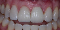 Implant and Veneer Restoration Post-Op