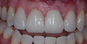 Implants and Veneer Restoration Post-Op