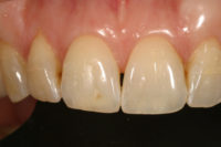 Dr. Lee Ann Brady Incisal Edge Translucency