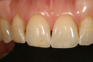 Dr. Lee Ann Brady incisal translucency