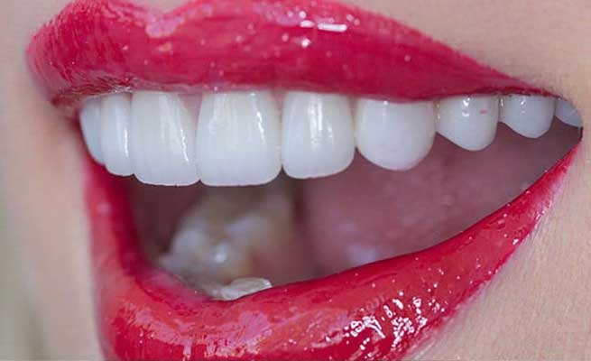 white teeth red lipstick